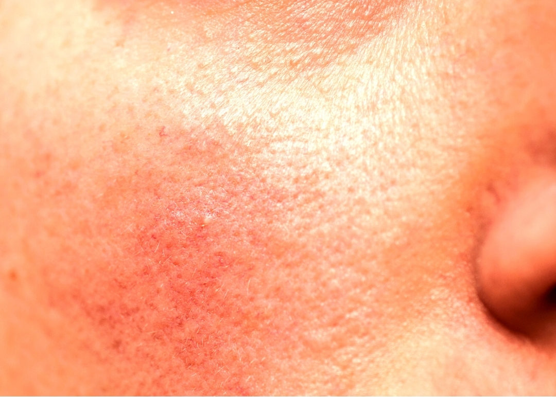 piel rosacea
